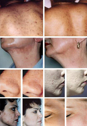 Before & After - MicroDerm Abrasion