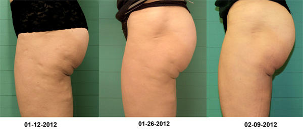 before&after3_bodySculpting