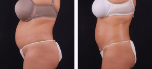 Before & After - Body Sculpting