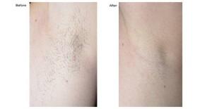 Before & Afer - Laser Hair Removal