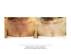 Before & After - Peel Chest